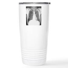 Pneumothorax, X-ray Travel Mug