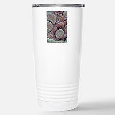 Prostate cancer, SEM Travel Mug