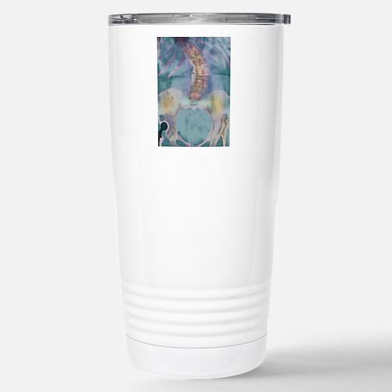 Scoliosis spine deformi Stainless Steel Travel Mug