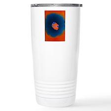 Smallpox virus Travel Mug