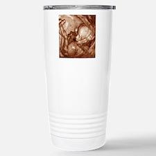3-D foetal ultrasound Stainless Steel Travel Mug