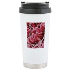 Blood clot, SEM Travel Mug