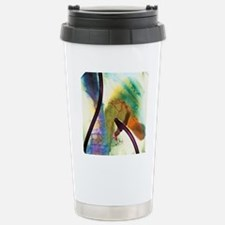 Coloured X-ray of gall  Travel Mug