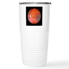 Fundus camera image of  Travel Mug