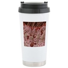 Hair follicles, SEM Travel Mug