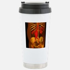 Aortic aneurysm, 3-D CT Stainless Steel Travel Mug