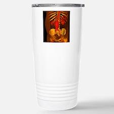 Aortic aneurysm, 3-D CT Travel Mug