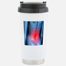 Lower back pain, concep Stainless Steel Travel Mug