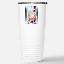 Large intestine, X-ray Stainless Steel Travel Mug