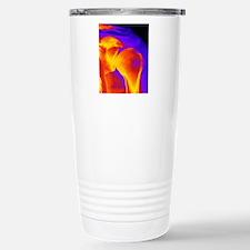 Shoulder joint X-ray Travel Mug
