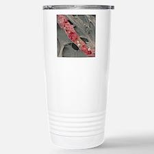 Ruptured venule, SEM Travel Mug