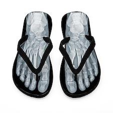 X-Ray Flip Flops