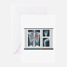 Heart X-Ray Greeting Cards