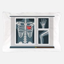 Heart X-Ray Pillow Case