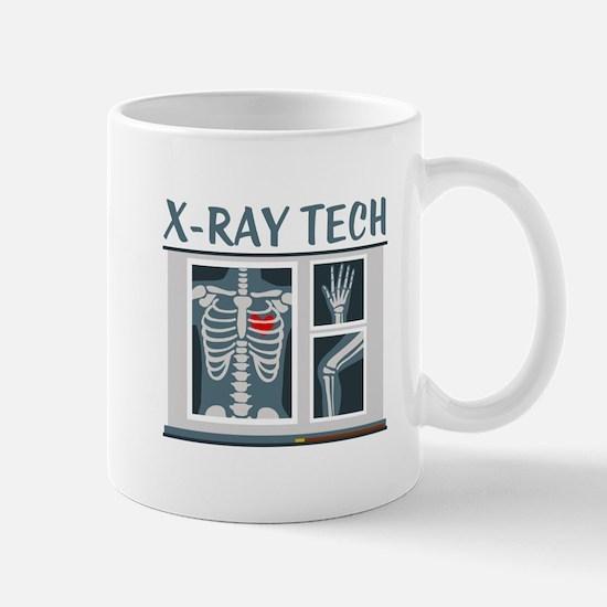 X-Ray Tech Mugs