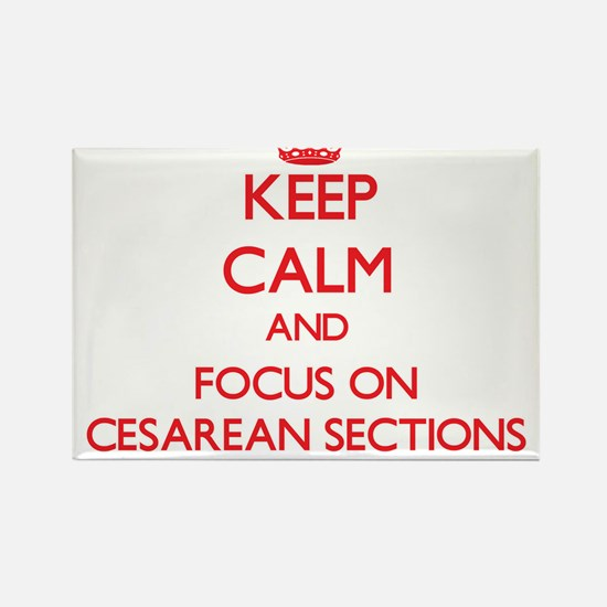 Keep Calm and focus on Cesarean Sections Magnets