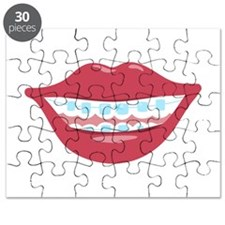 Braces Smile Puzzle