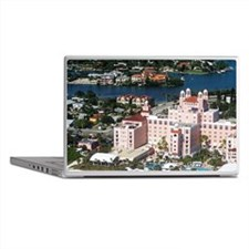 Aerial view of the Don Cesar Resort,  Laptop Skins