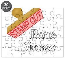 Bone Disease Puzzle