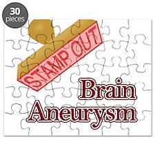 Brain Aneurysm Puzzle