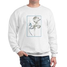 Cute Hip replacement Sweatshirt