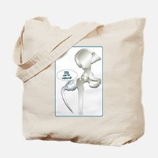 Cute Hip replacement surgery Tote Bag