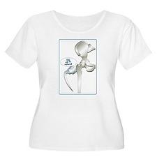 Unique Hip replacement T-Shirt