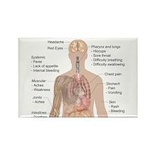 Symptoms of Ebola Magnets