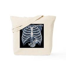 Baby Skel-o-Scope Tote Bag