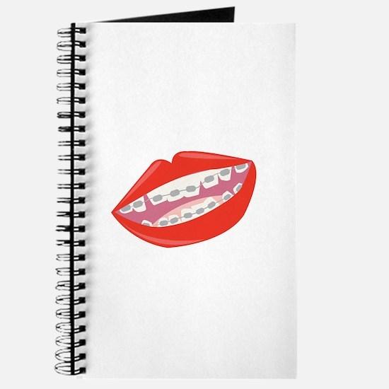 Braces Teeth Journal