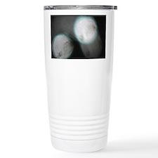Miracle's Sun Travel Mug