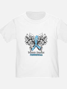 Thyroid Disease T