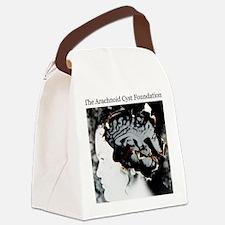 The Arachnoid Cyst Foundation Canvas Lunch Bag