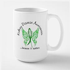 Kidney Disease Butterfly 6.1 Mug