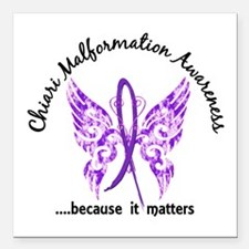 "Chiari Butterfly 6.1 Square Car Magnet 3"" x 3"""