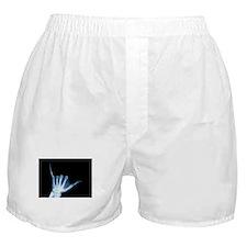 Shaka Hand Sign X-ray ALOHA Boxer Shorts