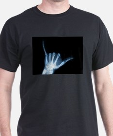 Shaka Hand Sign X-ray A T-Shirt