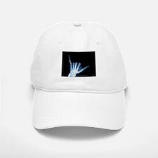 Shaka Hand Sign X-ray ALOHA Baseball Baseball Cap