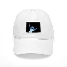 Shaka Hand Sign X-ray ALOHA Baseball Cap