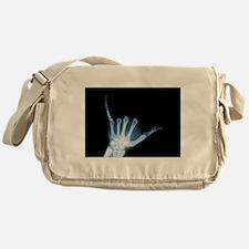 Shaka Hand Sign X-ray ALOHA Messenger Bag