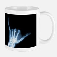 Shaka Hand Sign X-ray ALOHA Mugs