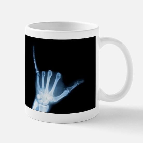 Shaka Hand Sign X-ray ALOHA Mugs
