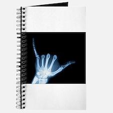 Shaka Hand Sign X-ray ALOHA Journal