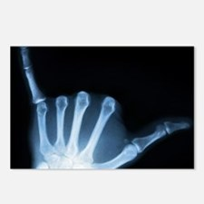 Shaka Hand Sign X-ray ALO Postcards (Package of 8)