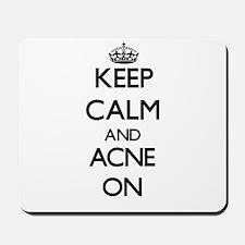 Keep Calm and Acne ON Mousepad