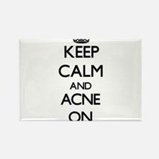 Keep Calm and Acne ON Magnets