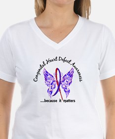 Congenital Heart Defect But Shirt