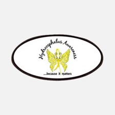 Hydrocephalus Butterfly 6.1 Patch