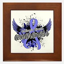 Addison's Disease Awareness 16 Framed Tile