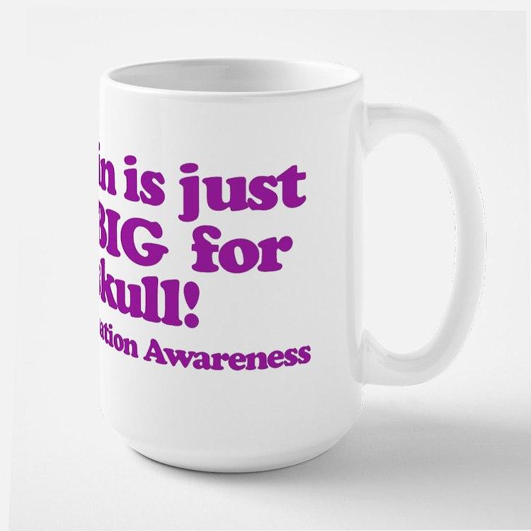 Chiari Malformation Awareness - Brain Mugs